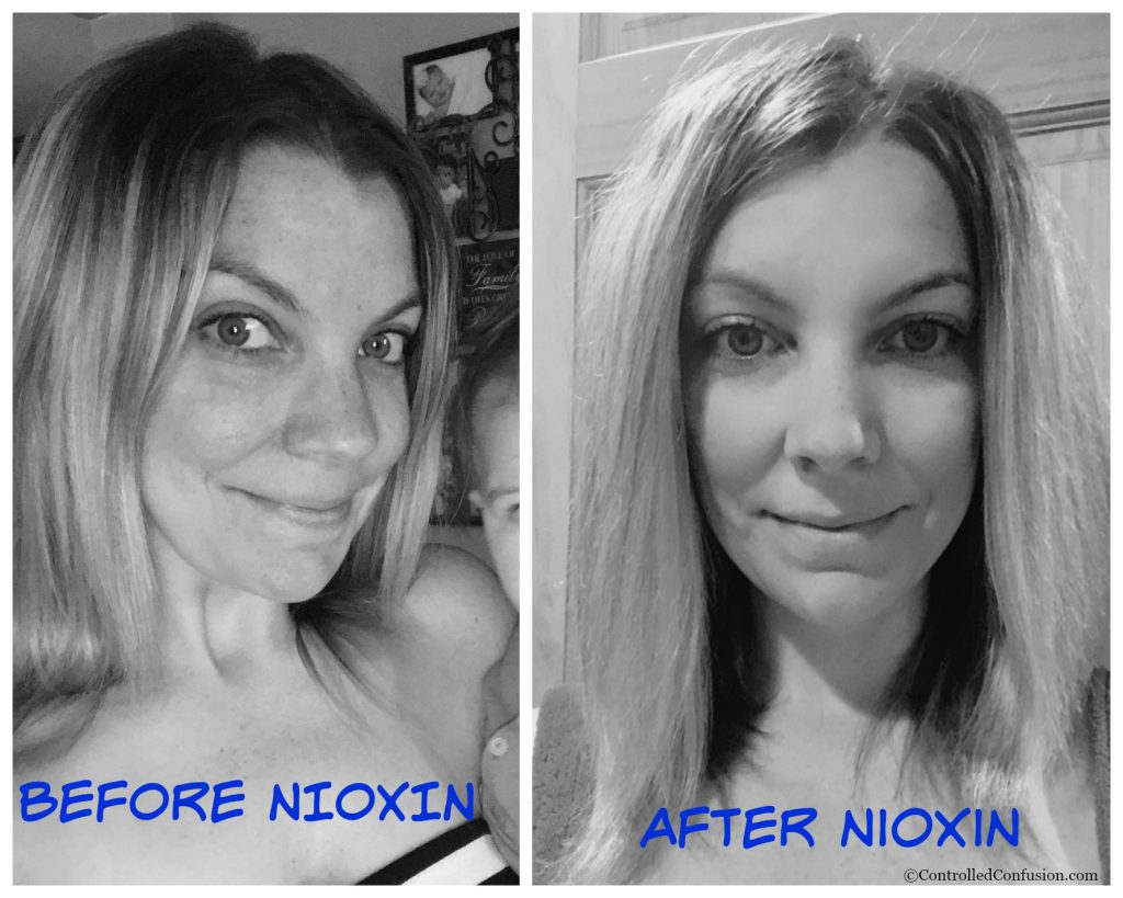 How I Gained Fuller Hair in 30 Days with NIOXIN